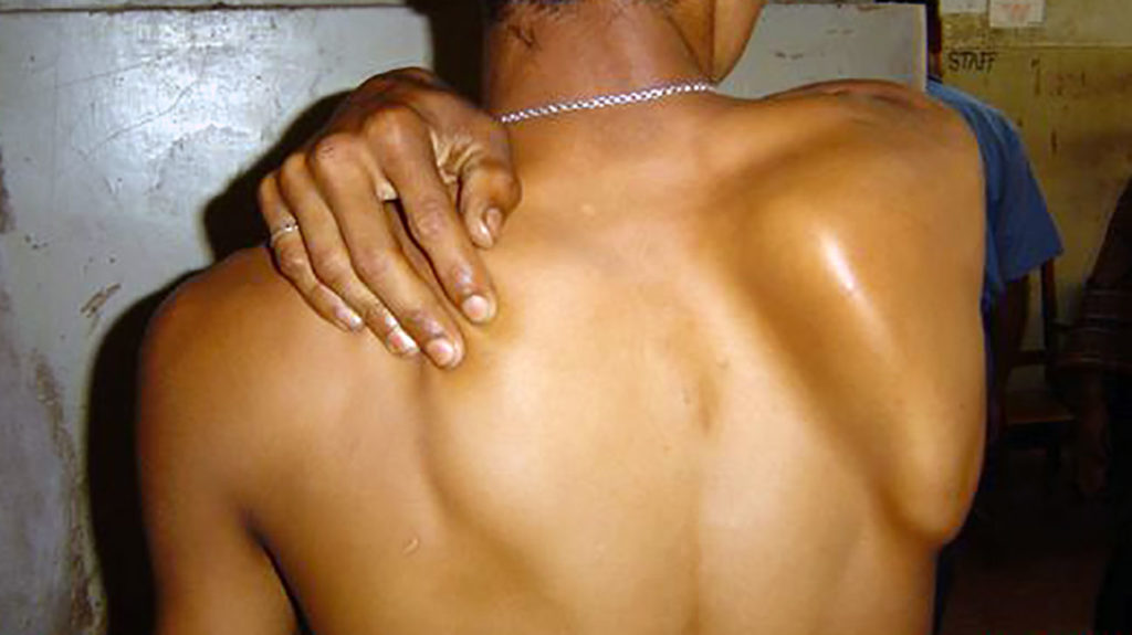 Scapular Winging Symptoms Treatments And Exercises