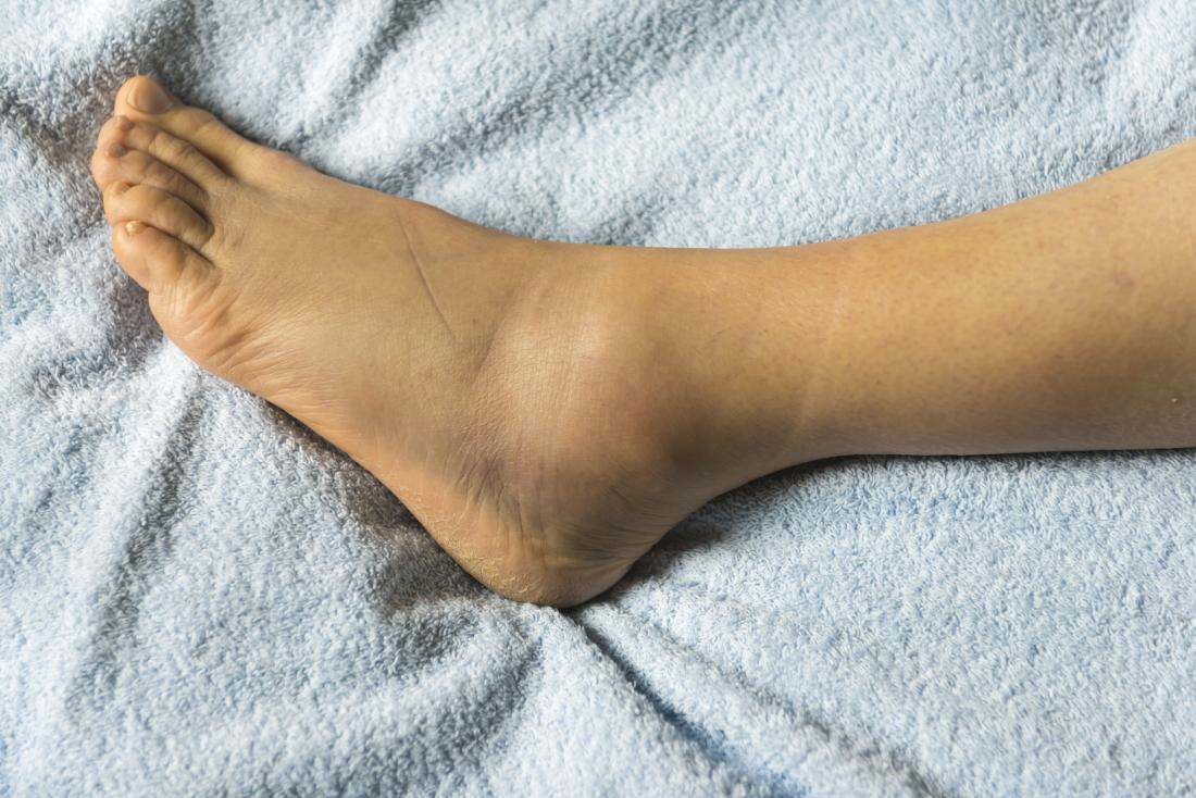 Swelling: Is it serious? Symptoms, causes, and treatment