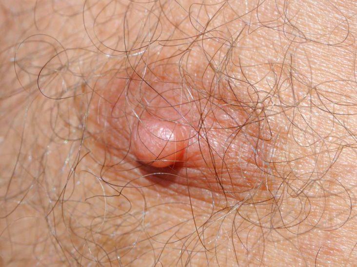 Nipple Problems Symptoms Causes And Treatments