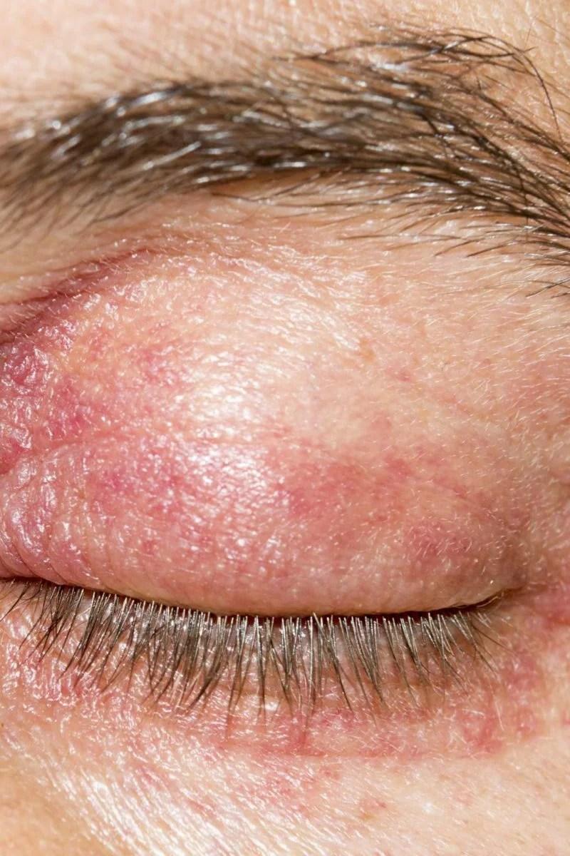 Eyelid dermatitis: Treatment symptoms and causes