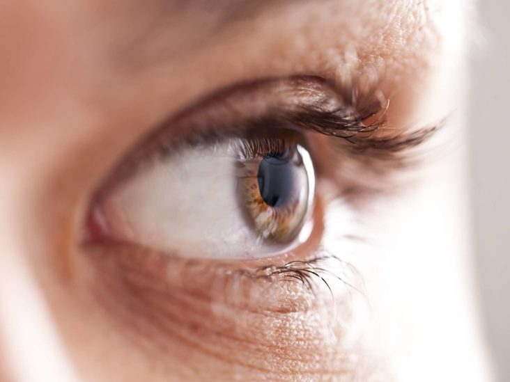 does diet affect eye color ncbi