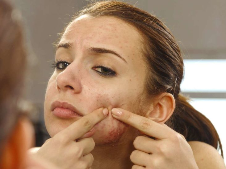 Pimples: Why do they happen?