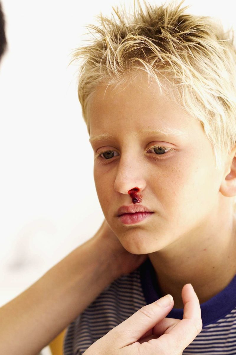Nosebleeds in children: When to see a doctor, causes, and prevention