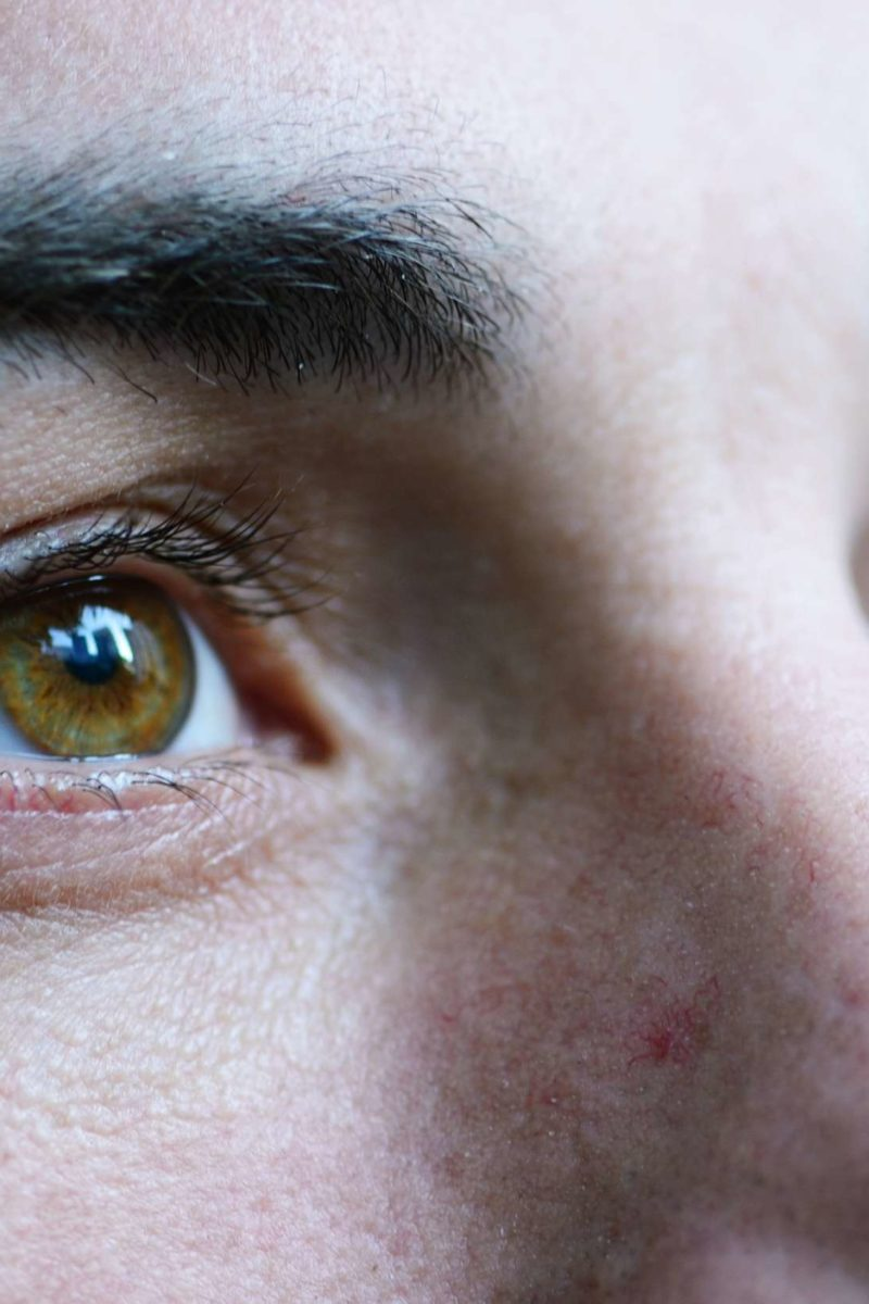 How does MS affect vision? Eye symptoms and treatment