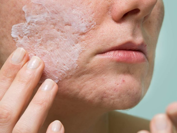 Hydrocortisone For Acne Does It Work Safety And More