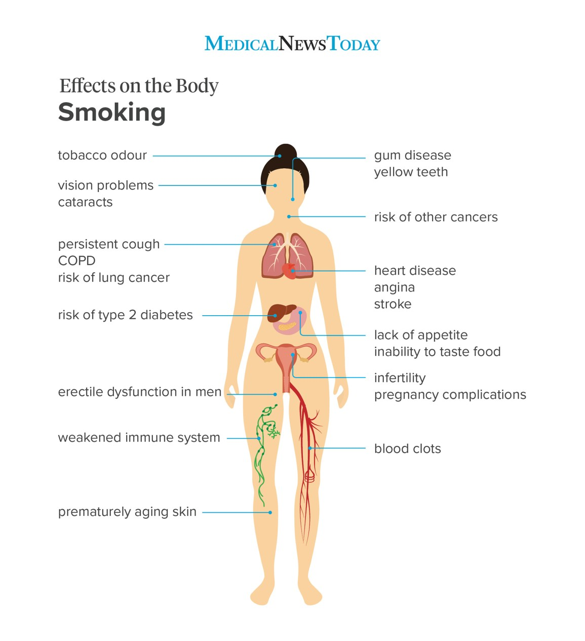 an effects on the body infographic showing the effects on the body of smoking