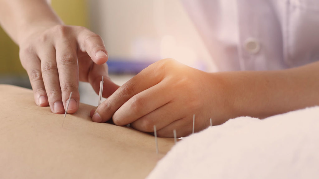 a person having acupuncture and wondering if does medicare cover it