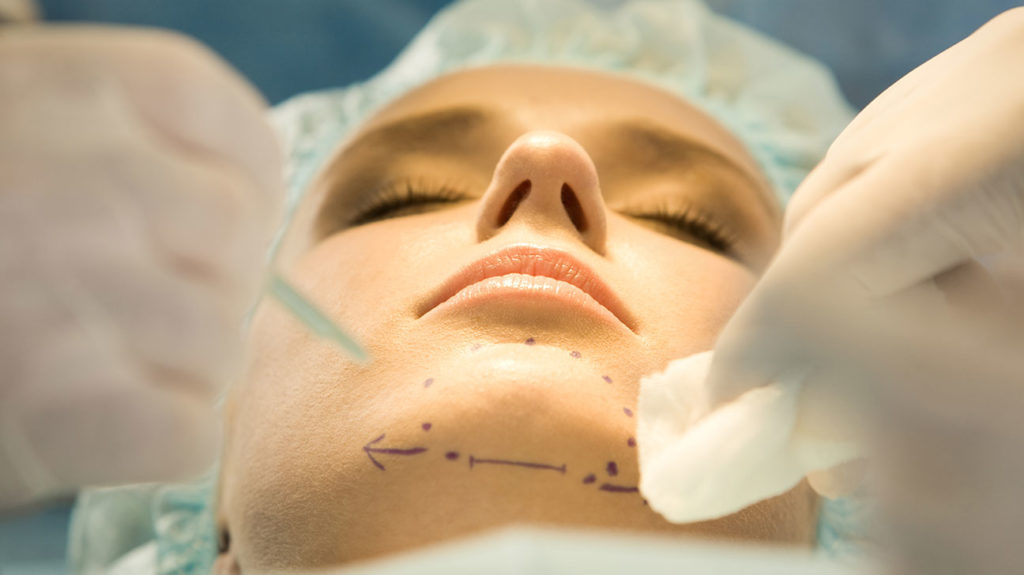 a woman in a surgical theatre getting prepared for a genioplasty on her chin