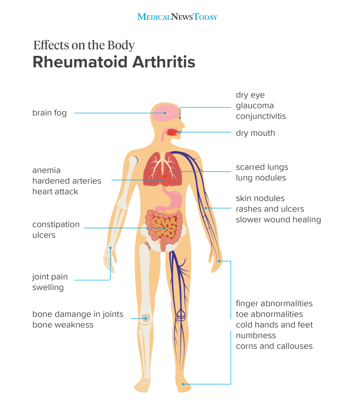 an infographic showing the effects on the body of Rheumatoid Arthritis