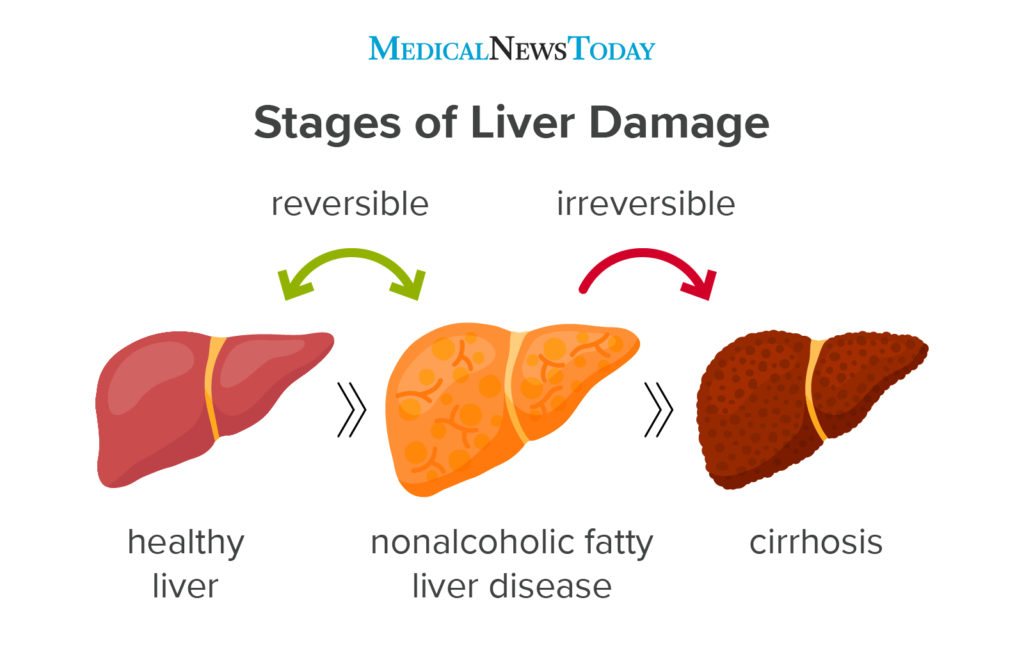 fatty liver after rapid weight loss