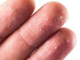Skin peeling on fingertips: 10 causes