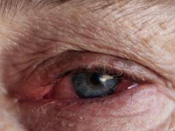 Infective conjunctivitis (pink eye): Symptoms, diagnosis, and ...