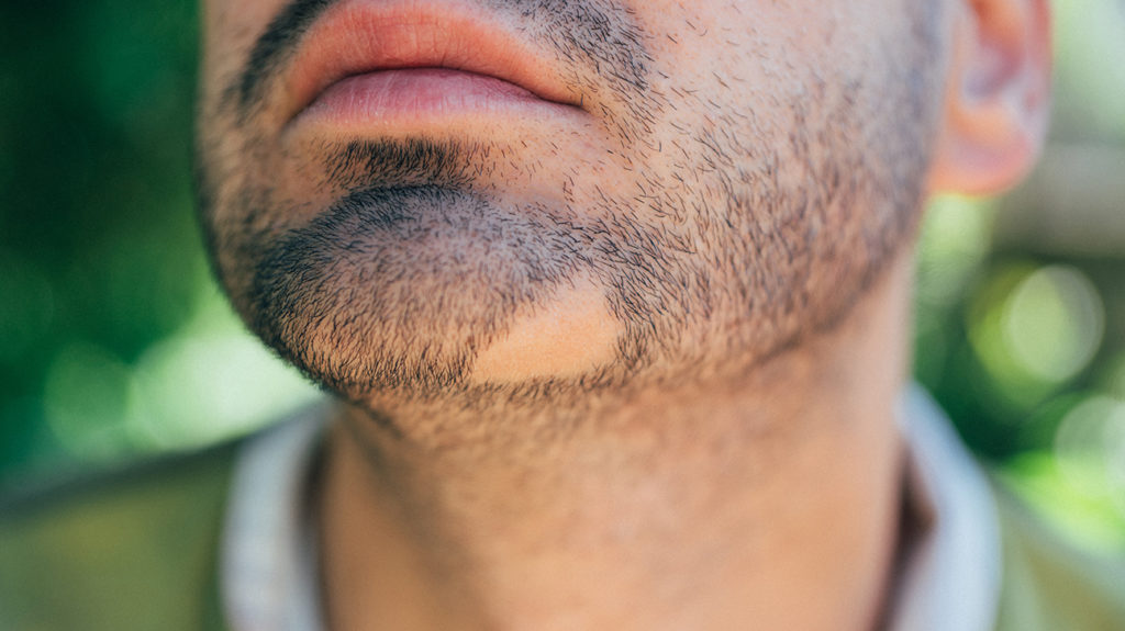 Man with a bald patch in beard