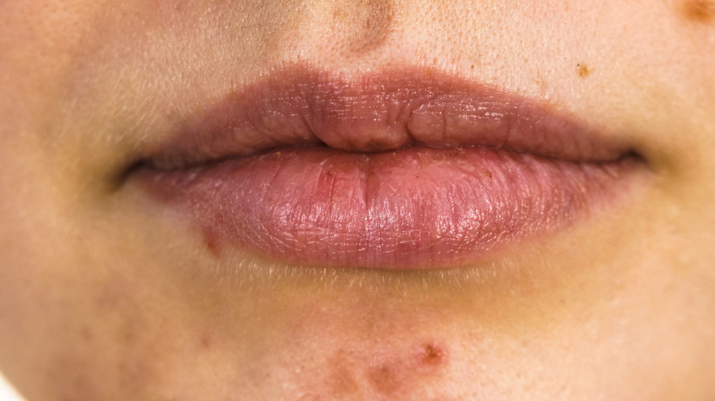 a close up of a woman's face showing Acne around the mouth