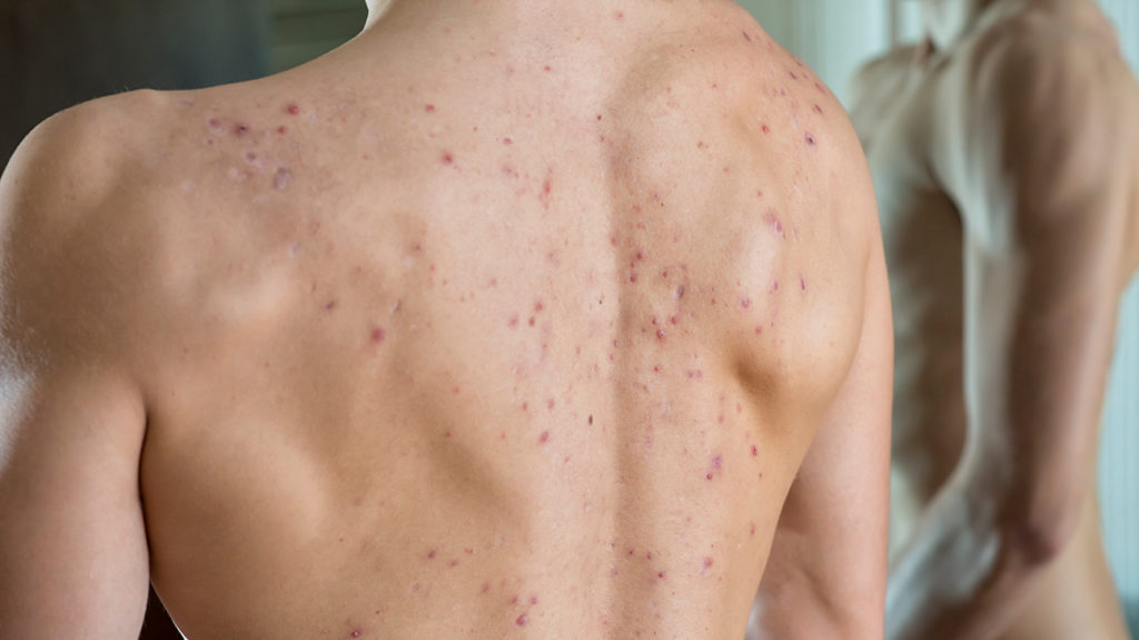 a topless man showing the cystic acne on his back