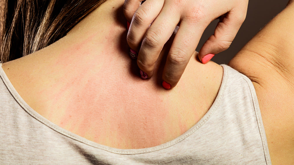 a woman waking up with scratches on her back