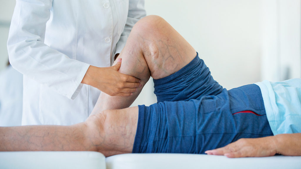 a doctor examining a mans calf for symptoms of deep vein thrombosis