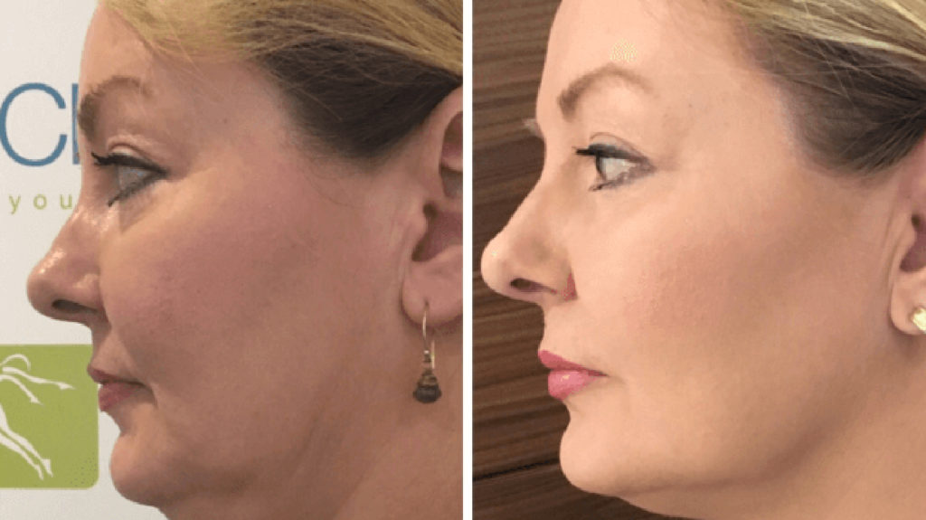 before and after of High-intensity focused ultrasound treatment.