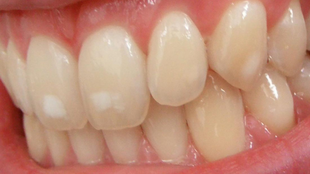 Dental fluorosis on the teeth