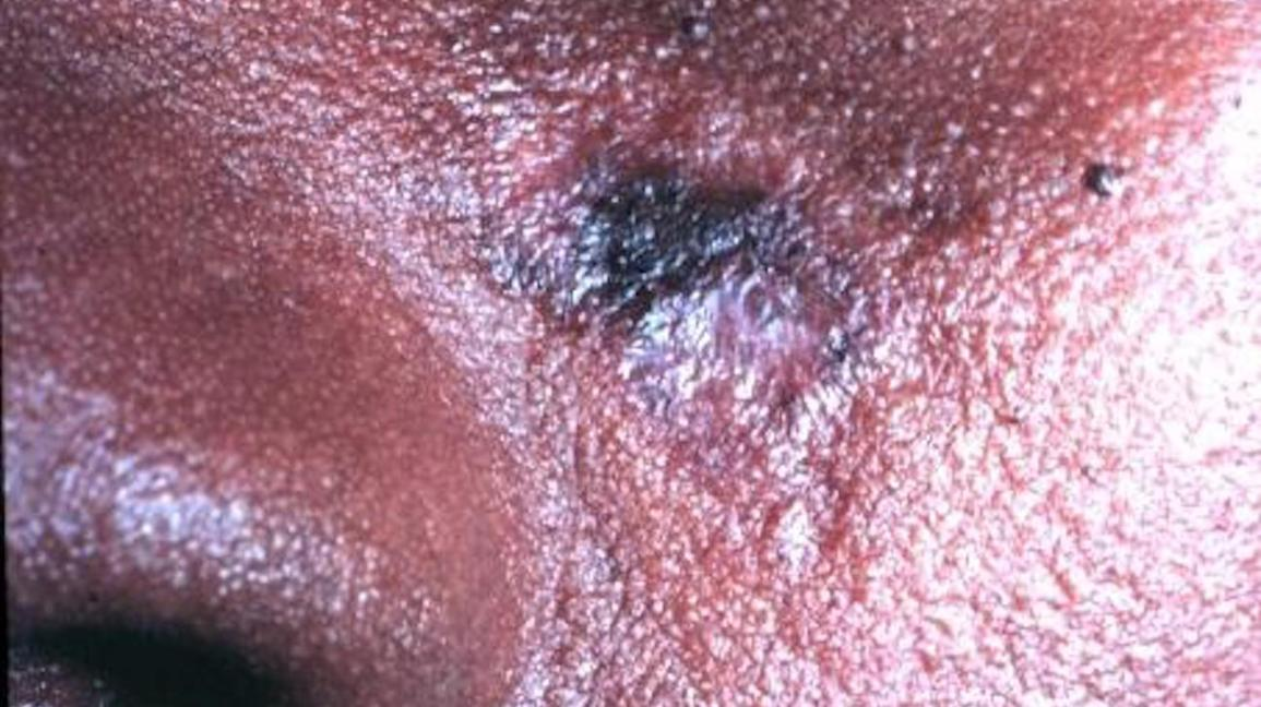 Discoid lupus on the face.