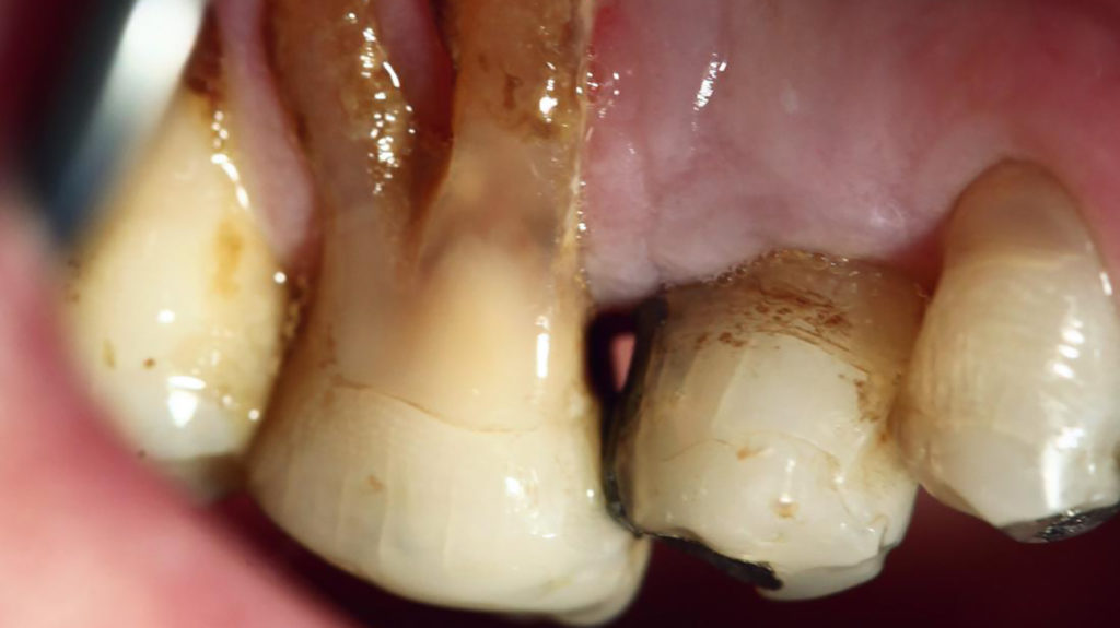 Swollen gum around one tooth: Causes and treatment