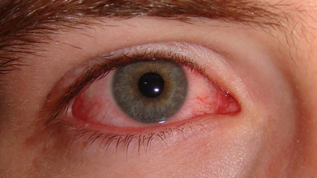 Close up of allergic pink eye
