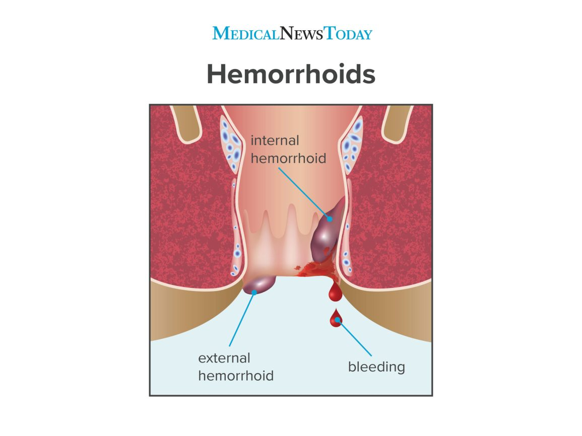 Hemorrhoids during pregnancy: Symptoms, treatment and more