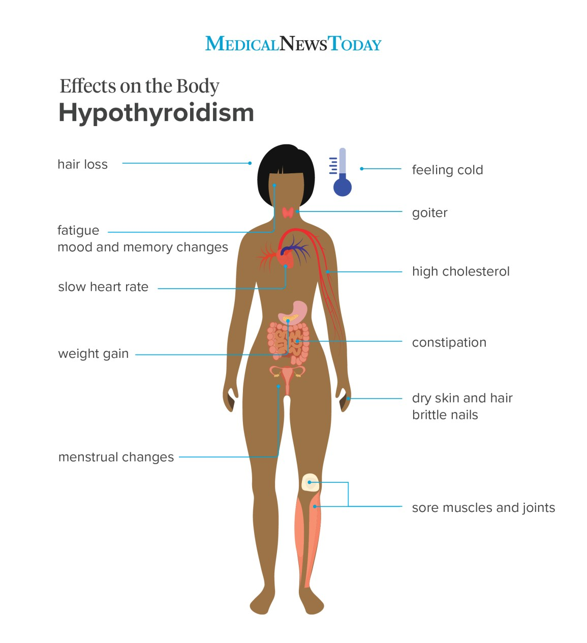 Infographic showing the effects of hypothyroidism on the body.