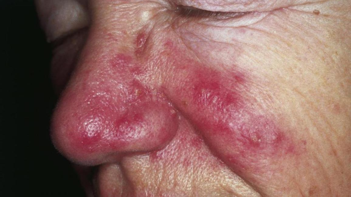 Rosacea skin rash on nose and cheeks.