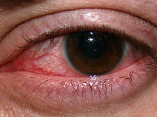 Keratitis in the eye
