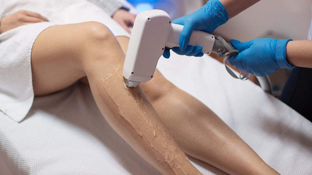 Get Rid Of Your Unwanted Hair Using Laser Hair Removal