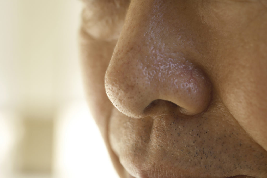 close up of a nose