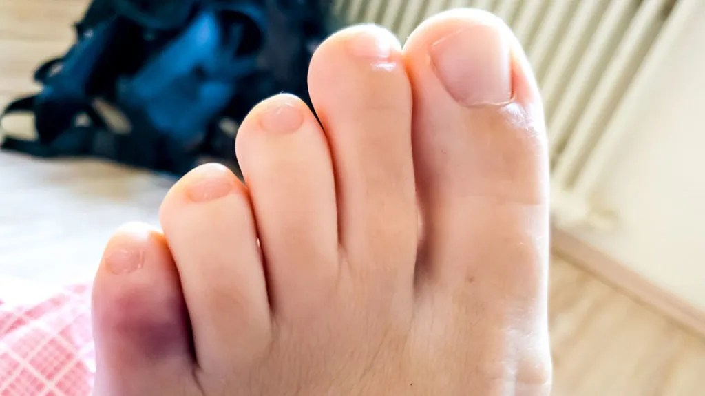 Broken pinky toe: Symptoms, treatment, and other conditions