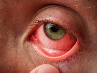 Conjunctivitis in the eye