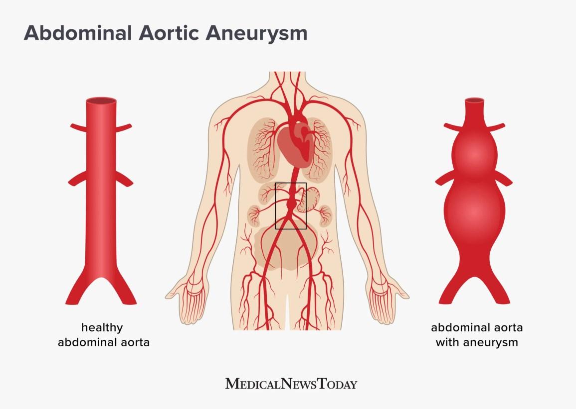 Abdominal aortic aneurysm: Screening, treatment, and symptoms
