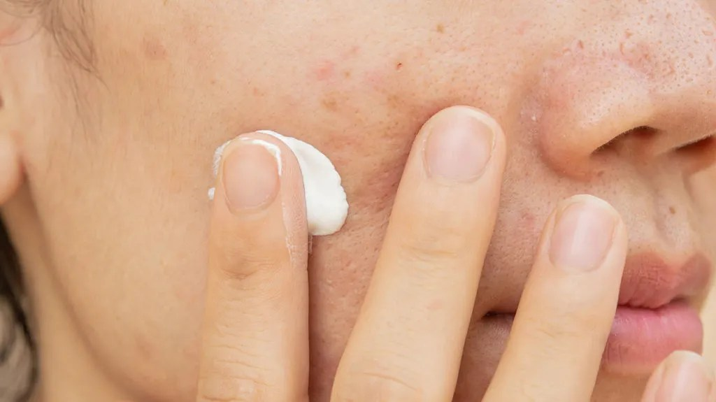 Best Scar Creams For Surgery Burns Acne And More