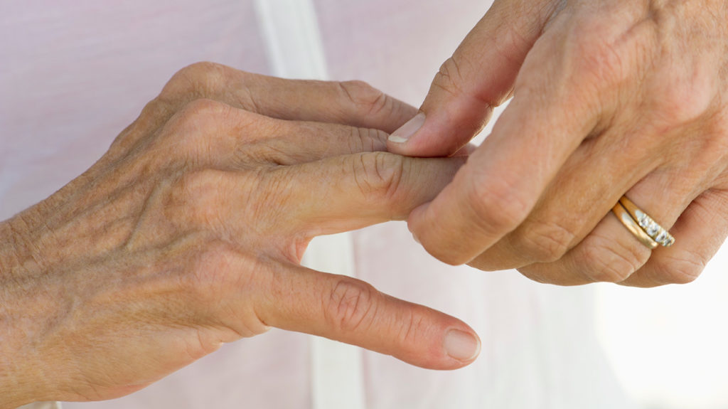 a woman holding her finger joint as she has pain there