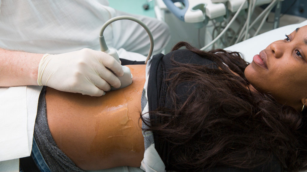 a woman undergoing an ultrasound on her stomach to see if she has a Placenta previa