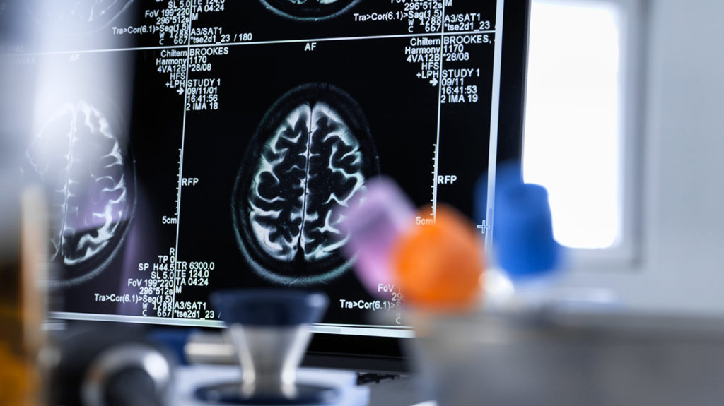 brain scans on a computer screen
