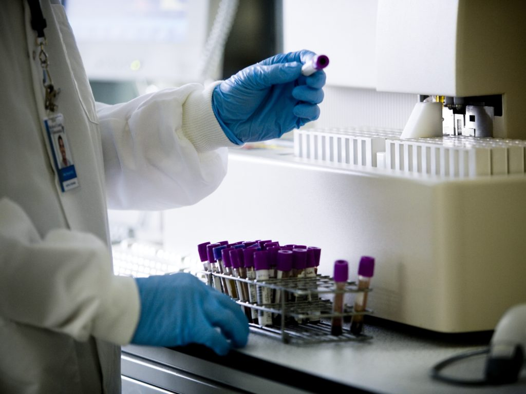 concept photo of researcher looking at blood samples