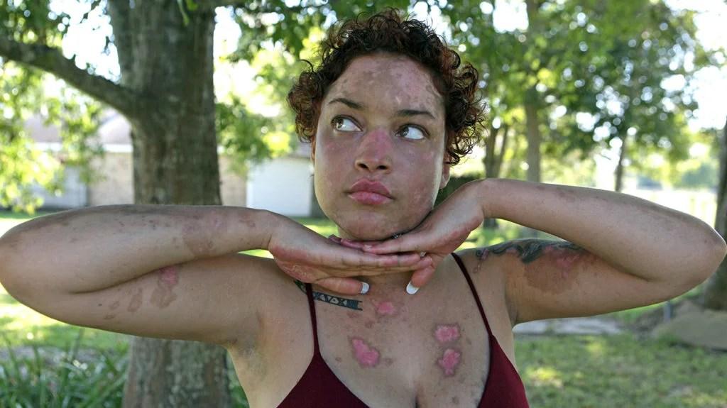 Jokiva Bellard爆头握着她的手在她的脸上,显示病变,在她的身体上,在日落,在2017年9月30日的路易斯安那州。尽管在她身体上的烧伤病变被烧伤,但这种火热的抱怨的模特也喜欢她的每一寸皮肤。在23岁的时候,Jokiva Bellard是一位在当地的A&E中的常规,由于衰弱的自身免疫性疾病造成的令人难以置信地攻击健康的组织 - 狼疮,这是一个常见的访问。自身免疫性疾病有许多形式,大多数患者经历轻微症状,但对于那些患有全身性狼疮的人(SLE),它可能是危及生命的。当Jokiva从日落时,路易斯安那州首次在学习时被诊断出来时,她认为她可以像正常一样继续,但她迅速发现这种疾病会永远改变她的生活。在她的肾脏失败后,在A&E登陆她后,Jokiva在短短10天内丢失了50磅,意识到她不得不认真对待疾病。在获取Facebook上的A&E体验之后,Jokiva使用了她的在线在线,以提高对狼疮的认识,并庆祝她独特的美容水疱和所有人。通过Claire Bangser / Barcroft图片(照片信用卡)通过Getty Images / Barcroft Media阅读Claire Bangser / Barcroft Media的照片)