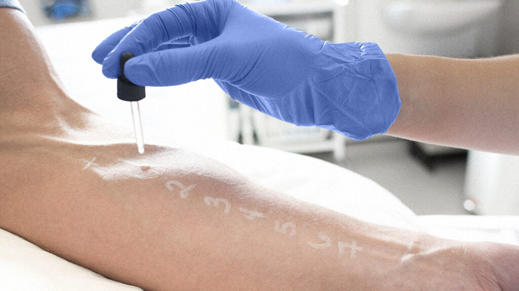 A person receives a skin prick test for allergy testing and wonders does medicare cover allergy testing.