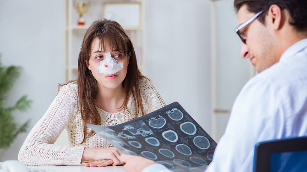 A woman with a broken nose speaks with her doctor about how to reduce swelling in the face as they review her x-rays.