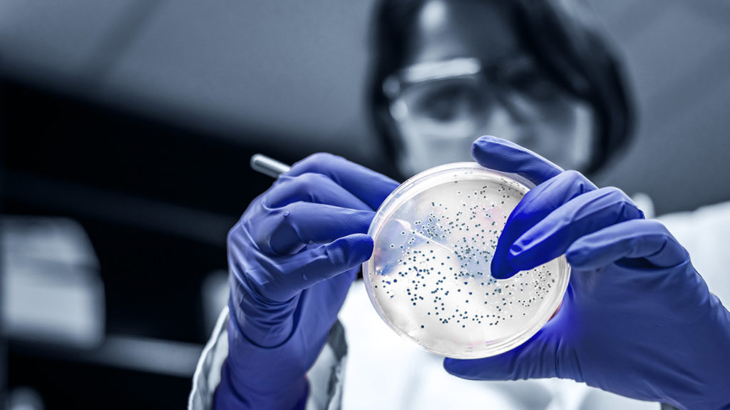 researcher performing examination of bacterial culture plate