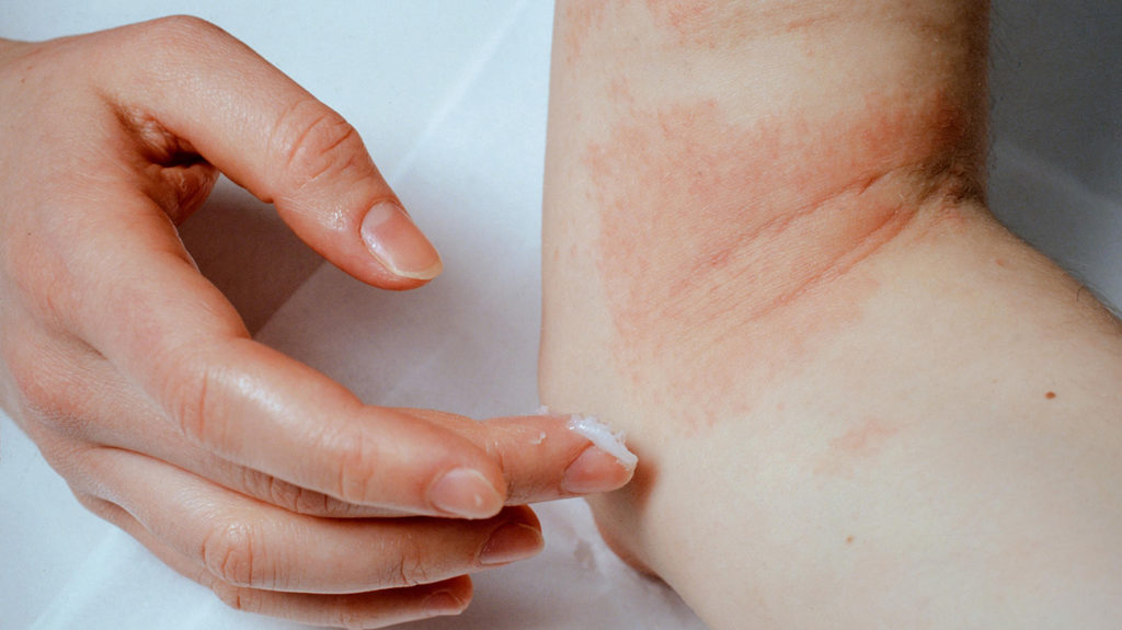 a woman applying cream to eczema on her arm