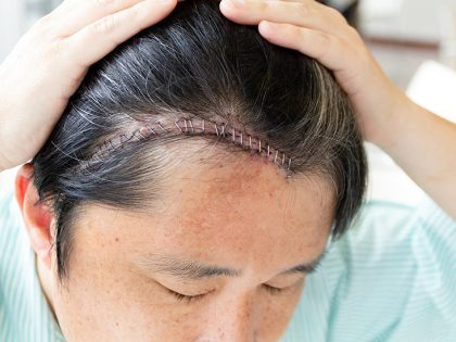 What is craniotomy, and how is it different from craniectomy?
