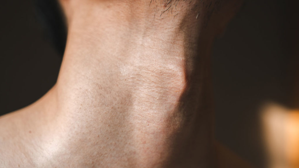 A close-up view of a man's neck, who may have abnormal T3 levels.