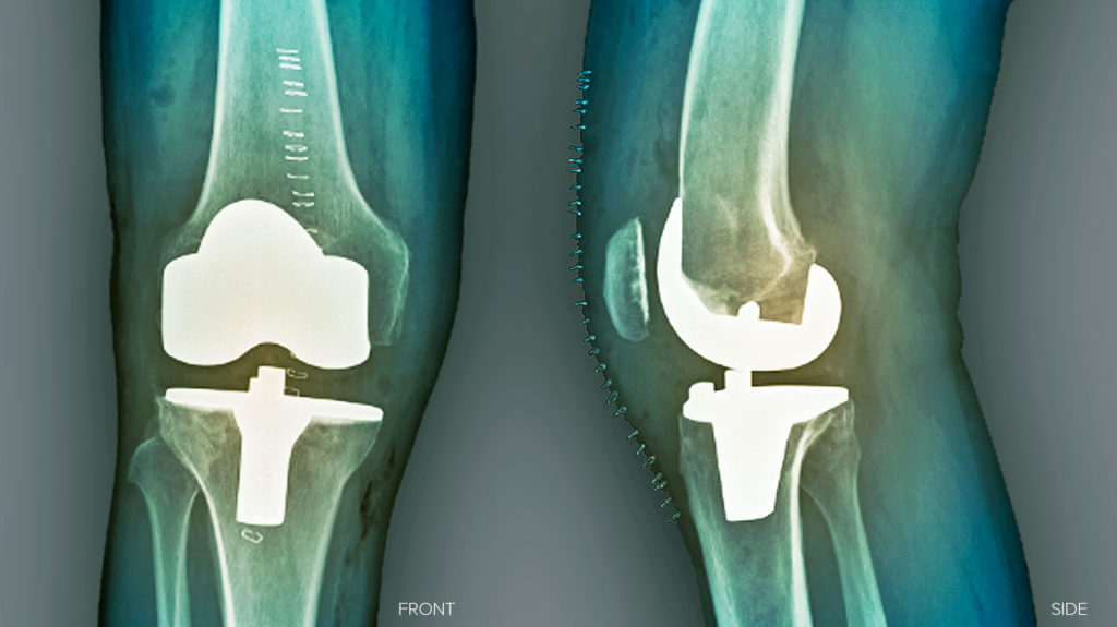 An x-ray of a knee replacement, which may result in the patient experiencing pain.