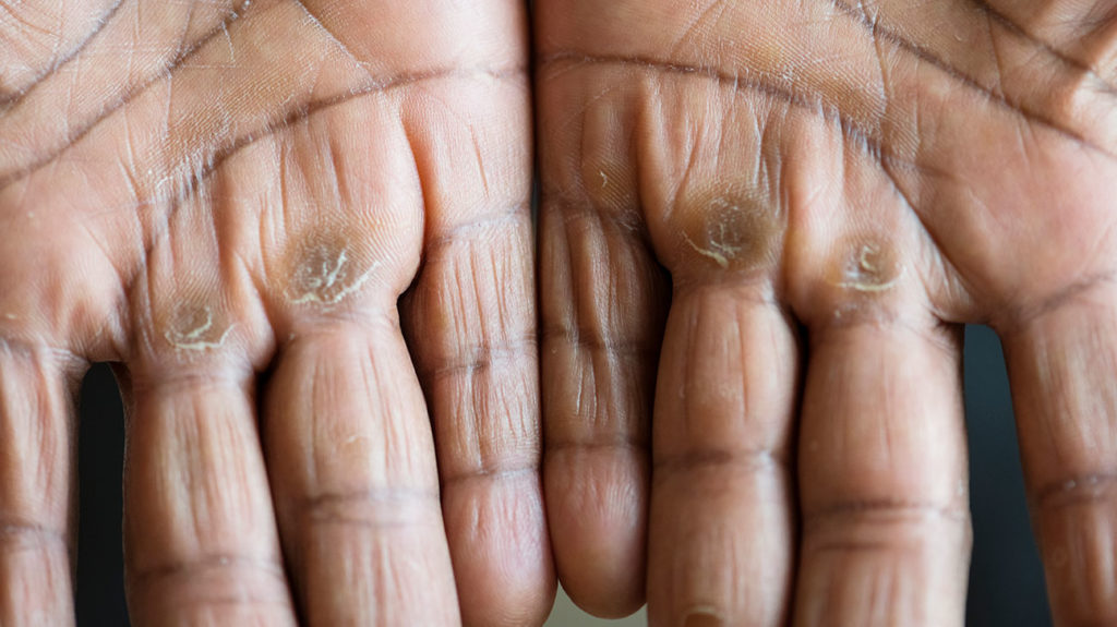 A person looking how to get rid of hard skin shows calluses on the hands.