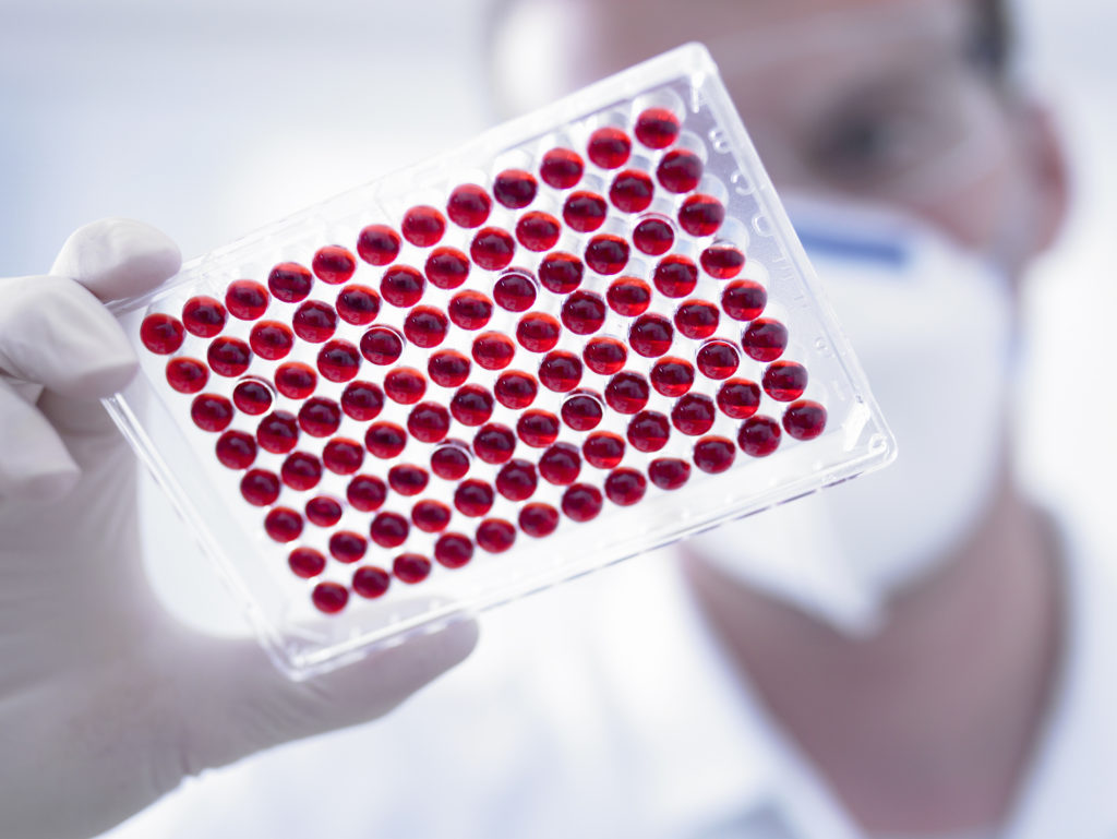 Scientist holding blood samples